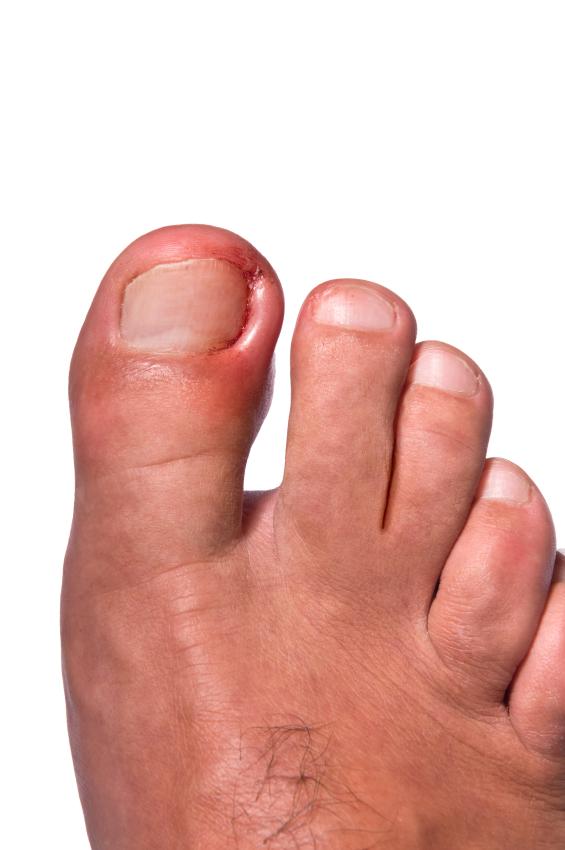 Blackmer Foot & Ankle | Ingrown Toenails in Meridian